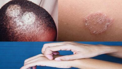 Photo of HERBAL REMEDY FOR TREATMENT OF RINGWORM