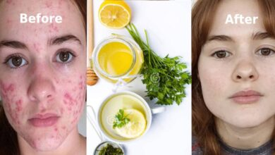 Photo of 100% FACE PIMPLE REMOVAL REMEDY
