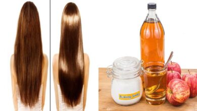 Photo of AMAZING BENEFITS OF BAKING SODA TO HAIR