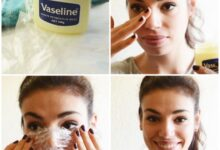 Photo of Natural Ways to Get Rid of Blackheads and Whiteheads Fast