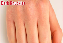 Photo of EASY WAY TO REMOVE DARK KNUCKLES OVERNIGHT