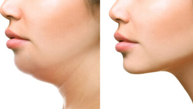 Photo of GET RID OF NECK FAT OVERNIGHT WITH THIS REMEDY