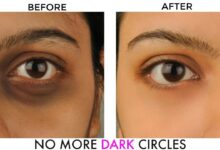 Photo of NATURAL WAYS TO REMOVE DARK CIRCLES UNDER THE EYES