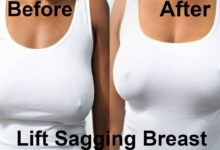 Photo of FIRM SAGGING BREAST WITH THIS SIMPLE SOLUTION