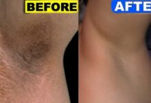 Photo of HOW TO LIGHTEN DARK UNDERARMS NATURALLY