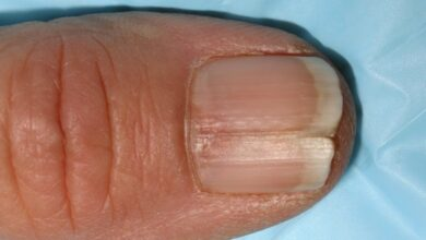 Photo of HOW TO REPAIR SPLIT NAILS