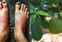 Photo of REDUCE INTERNAL SWELLING IN THE BODY