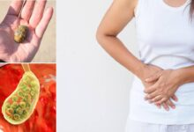 Photo of NATURAL REMEDIES FOR GALLSTONES REMOVAL
