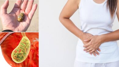 Photo of NATURAL REMEDIES FOR GALLSTONES