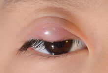 Photo of HOW TO TREAT PIMPLES ON EYE LID NATURALLY