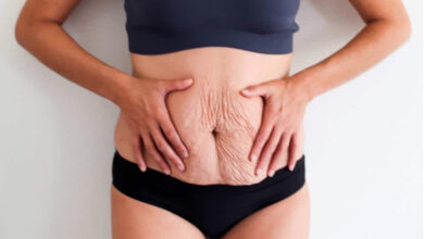 Photo of EFFECTIVE HOME REMEDIES FOR STRETCH MARKS