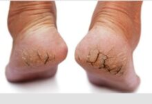 Photo of HERBAL SOLUTIONS FOR DRY, CRACKED & ITCHY FEET