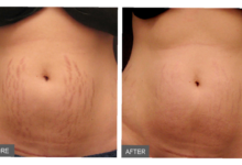 Photo of 8 SURE REMEDIES TO ELIMINATE STRETCH MARKS PERMANENTLY