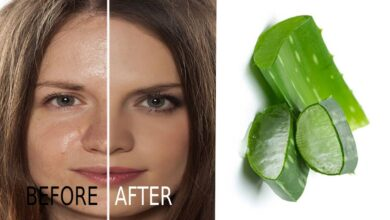 Photo of QUICK SOLUTION REMEDY FOR FACE PIMPLE