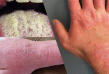 Photo of CAUSES AND TREATMENT OF DISCOLORED SKIN PATCHES