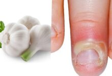 Photo of PERFECT GARLIC CLOVES REMEDY FOR WHITLOW