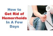 Photo of EFFECTIVE REMEDY FOR HEMORRHOIDS (CHRONIC PILE)