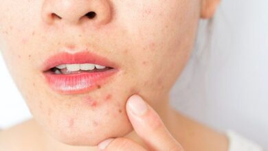 Photo of 5 GREAT HOME REMEDIES FOR PIMPLES AND PROBLEMATIC SKIN