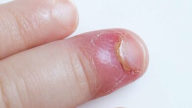Photo of NAILS INFECTIONS CAUSES AND PREVENTIONS