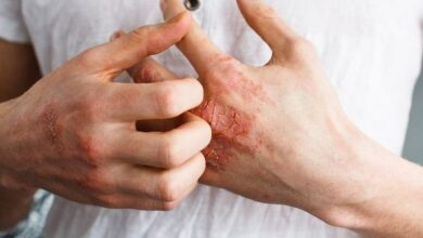 Photo of HOW TO CURE ECZEMA PERMANENTLY