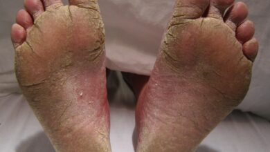 Photo of HOW TO COMBAT FOOT FUNGUS IN 1 WEEK