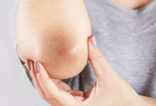 Photo of TIPS ON CAUSES AND REMEDIES ON BLACK ELBOWS AND PREVENTION