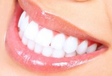 Photo of CAUSES AND PREVENTIONS OF YELLOW TEETH