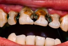 Photo of EFFECTIVE PREVENTION OF TOOTH DECAY