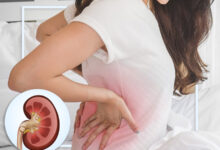 Photo of CAUSES OF CHRONIC KIDNEY DISEASE AND PREVENTIONS