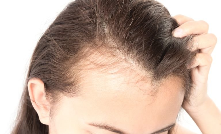 To stop balding ways Preventing hair