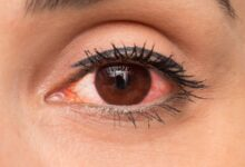 Photo of HOW TO PREVENT OR TREAT RED EYE