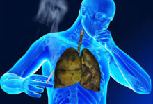 Photo of CAUSES AND PREVENTION OF TUBERCULOSIS